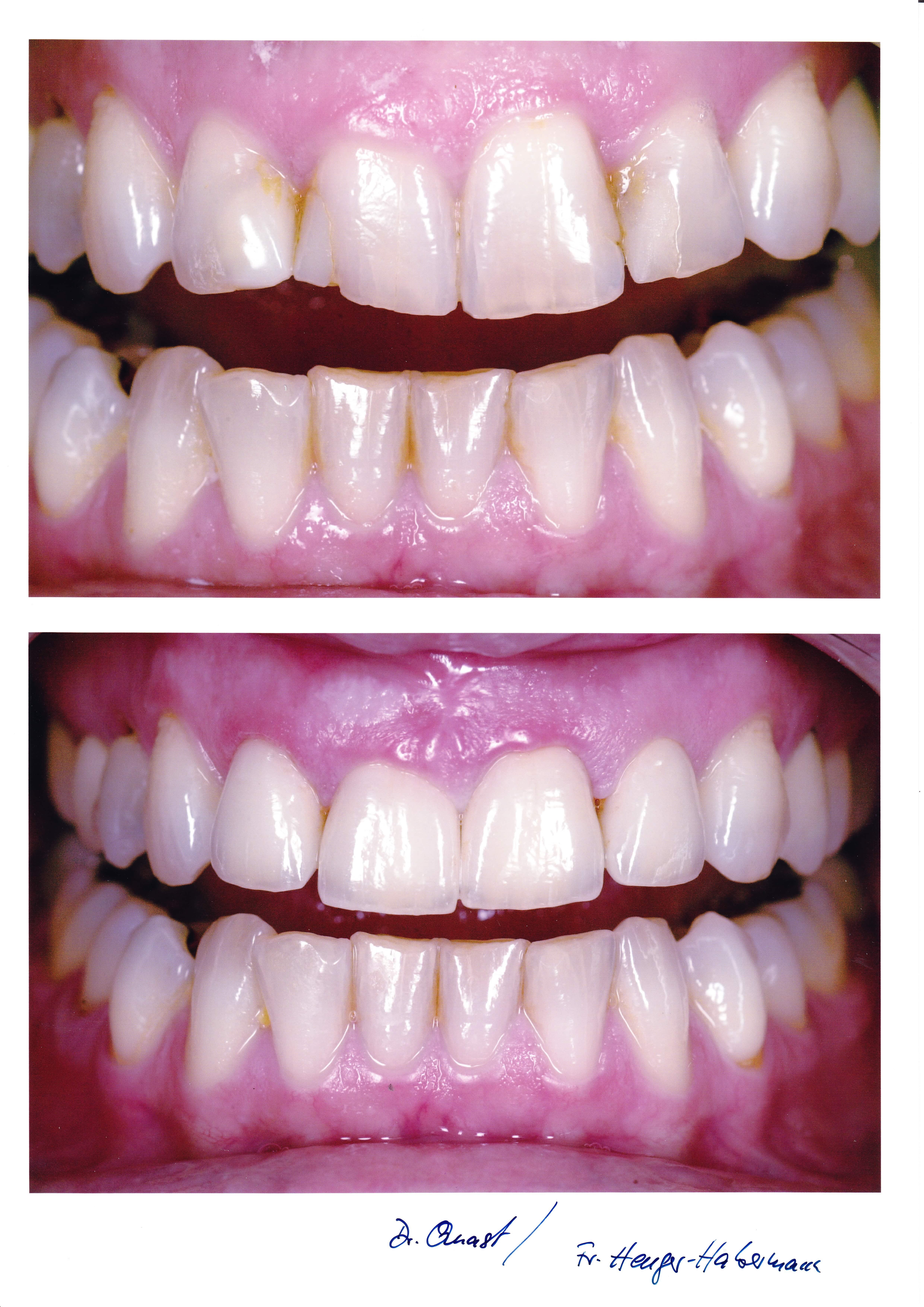 Zahnbleaching Bielefeld - endlich weiße Zähne und ein schönes Lächeln
