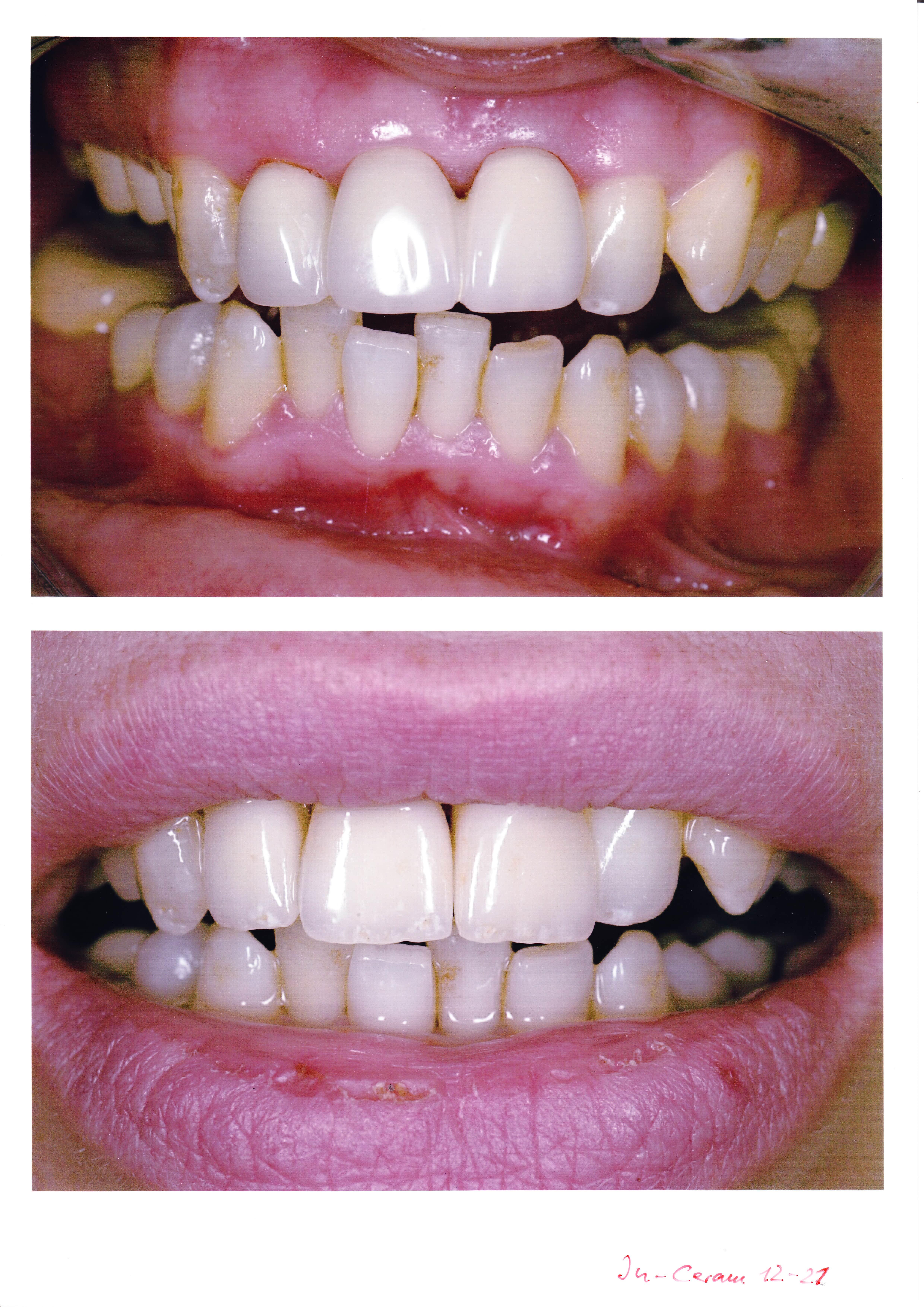 zahnbleaching bielefeld - spezialisierte Zahnärzte für ästhetische zahnmedizin
